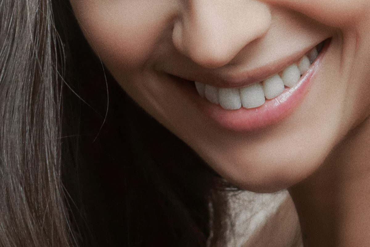 What Are Porcelain Veneers and How Do They Work?