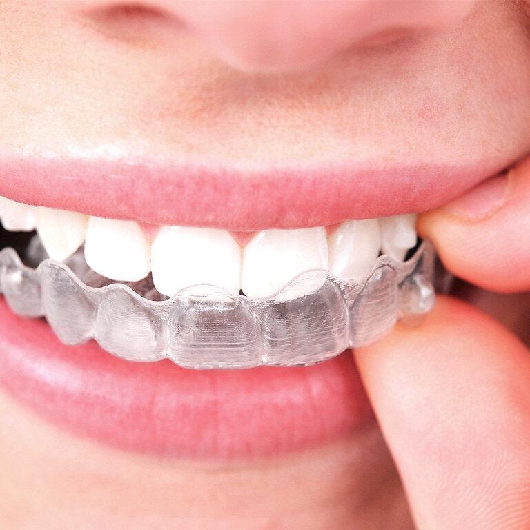 teeth-straighten in slough
